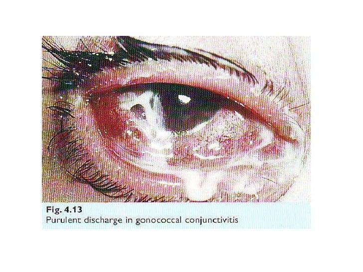 allergic conjunctiviti...