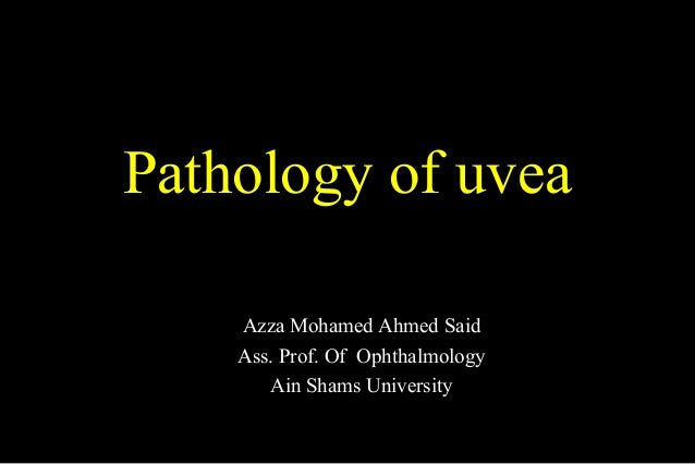 Pathology of uvea Azza Mohamed Ahmed Said Ass. Prof. Of Ophthalmology Ain Shams University