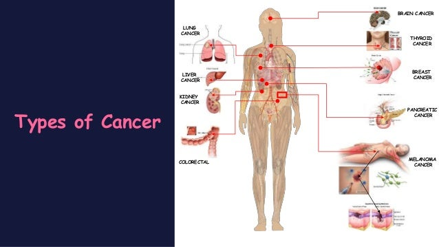 pathophysiology of breast cancer Breast cancer is cancer that develops from breast tissue signs of breast cancer may include a lump in the breast, a change in breast shape, dimpling of the skin.