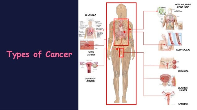 pathophysiology of breast cancer pdf