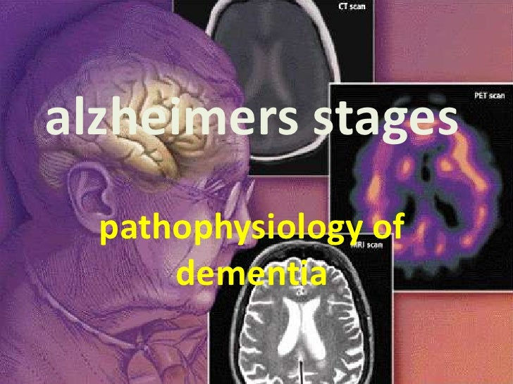 alzheimers stages  pathophysiology of      dementia