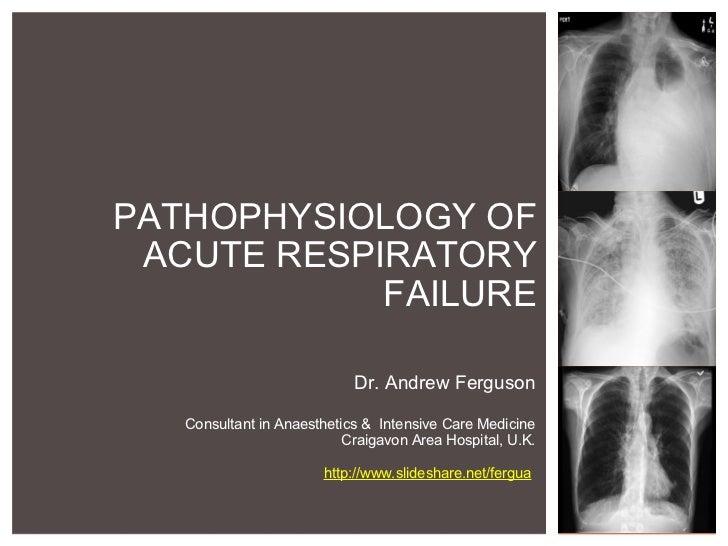 PATHOPHYSIOLOGY OF ACUTE RESPIRATORY FAILURE Dr. Andrew Ferguson  Consultant in Anaesthetics & Intensive Care Medicine C...