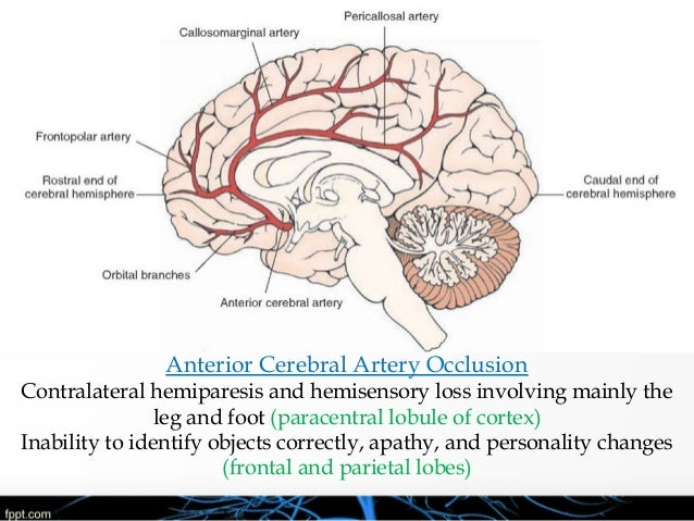Basic Anatomy & Pathophysiology of ischemic stroke