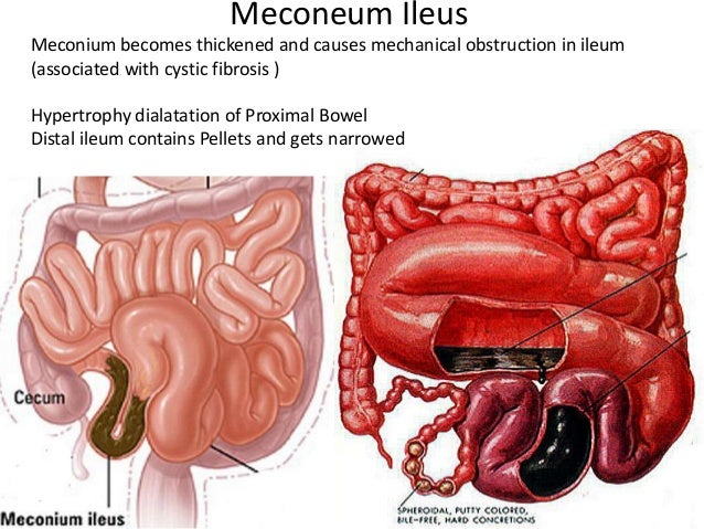 ileus diagram wiring diagram Ileus Anatomy pathopyshiology of intestinal obstruction chirantan mandal medical co\\u2026meconeum ileusmeconium becomes thickened and causes mechanical
