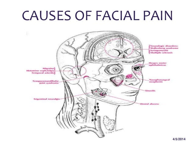 Facial cheek pain