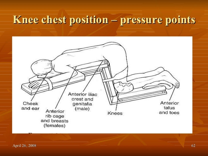 Prone knee chest position