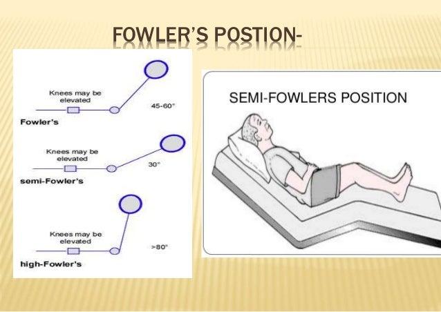 High Fowlers Position | www.pixshark.com - Images ...
