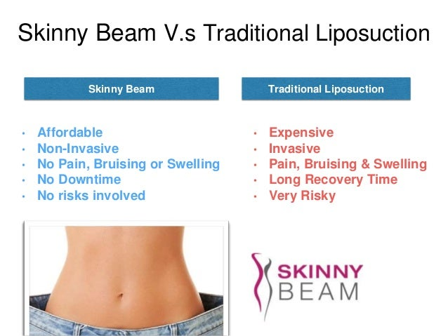 Skinny Beam Results Before And After 12 Treatments ...