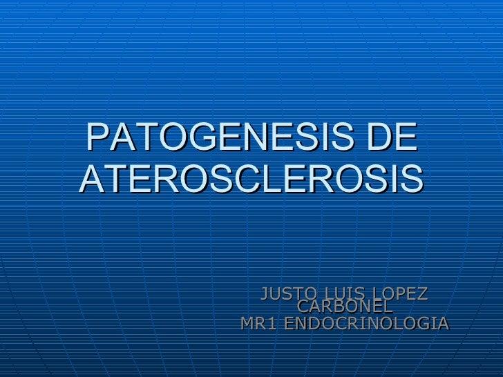 PATOGENESIS DE ATEROSCLEROSIS JUSTO LUIS LOPEZ CARBONEL MR1 ENDOCRINOLOGIA