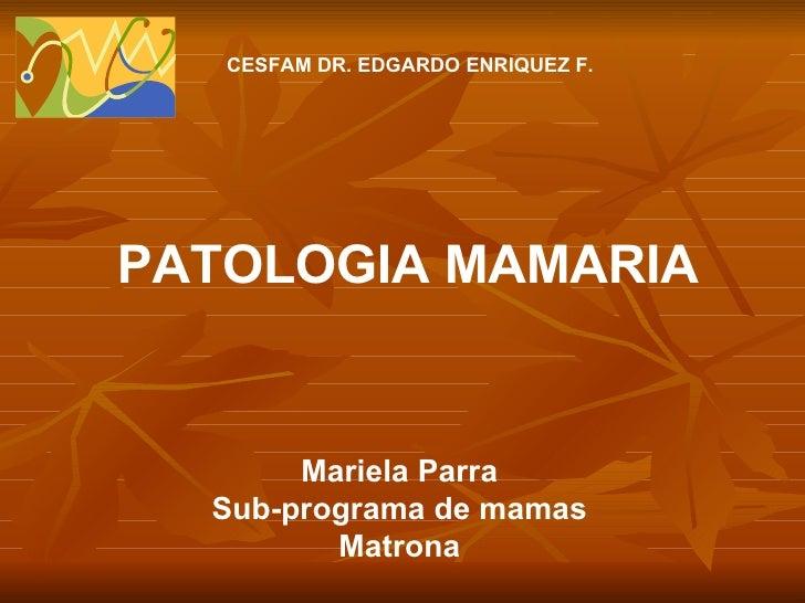 Mariela Parra Sub-programa de mamas Matrona PATOLOGIA MAMARIA CESFAM DR. EDGARDO ENRIQUEZ F.