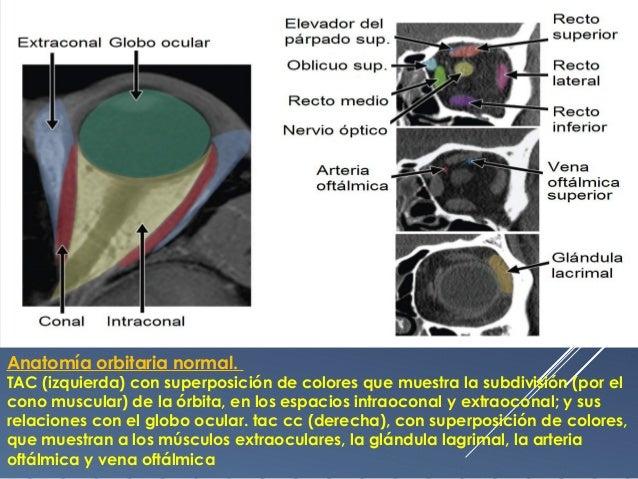 Patología de la orbita y el globo ocular diagnóstico imagenológico