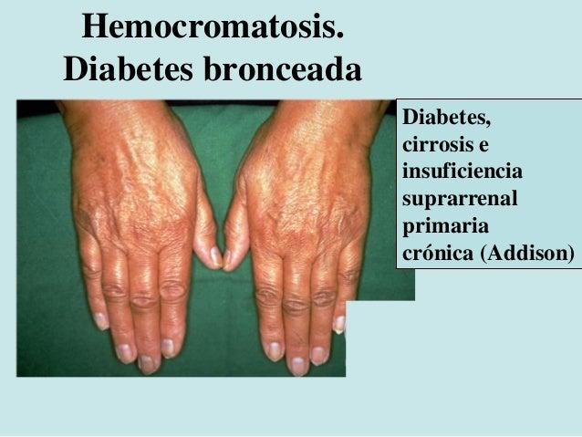 Incontinencia pigmentaria