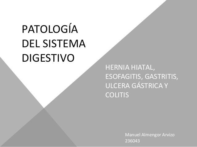 PATOLOGÍADEL SISTEMADIGESTIVO              HERNIA HIATAL,              ESOFAGITIS, GASTRITIS,              ULCERA GÁSTRICA...