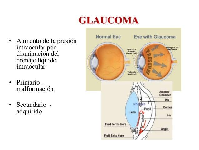 Patología de ojo y oido