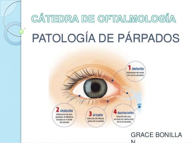 PATOLOGÍA DE PÁRPADOS  GRACE BONILLA