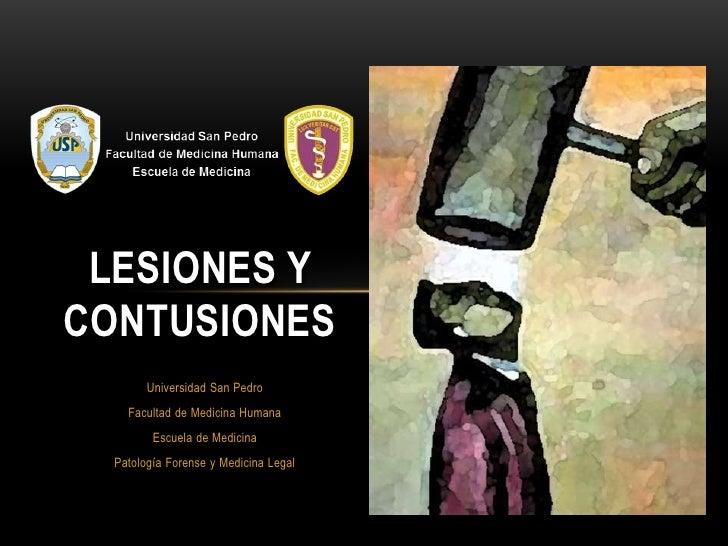 LESIONES YCONTUSIONES        Universidad San Pedro    Facultad de Medicina Humana         Escuela de Medicina  Patología F...