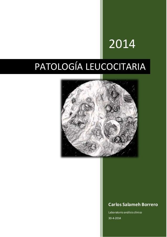 2014 Carlos Salameh Borrero Laboratorioanálisisclínico 30-4-2014 PATOLOGÍA LEUCOCITARIA