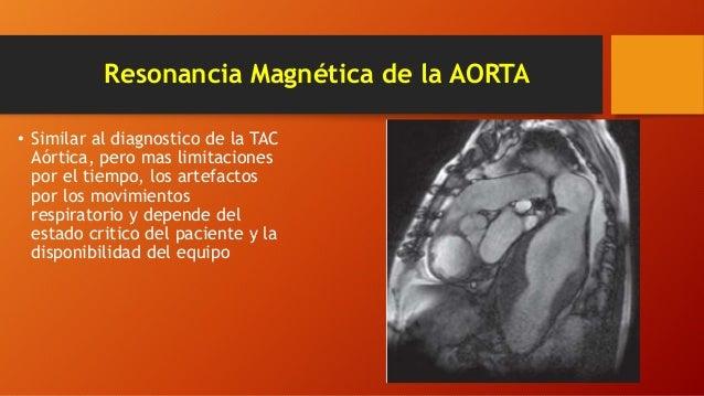 El tratamiento varikoza en la esfera de Tula