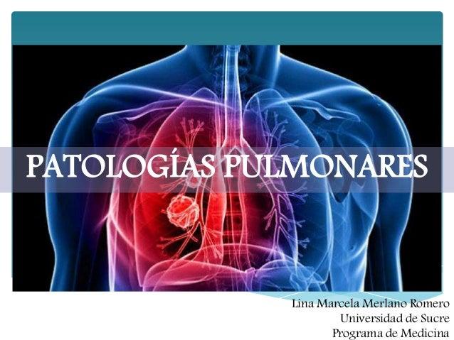 Patología pulmonar congénita ppt video online descargar.