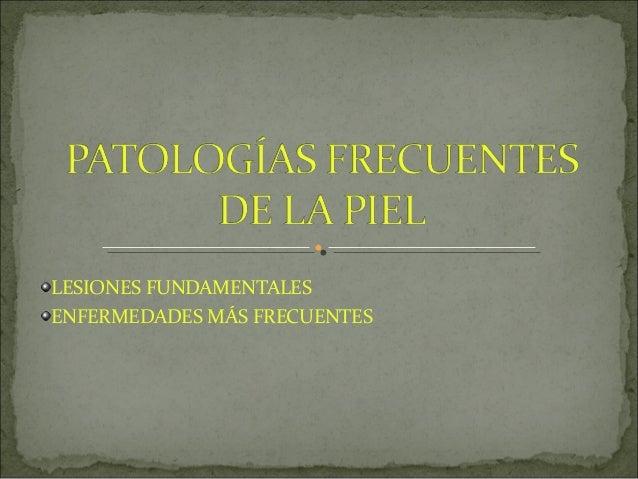 LESIONES FUNDAMENTALES ENFERMEDADES MÁS FRECUENTES