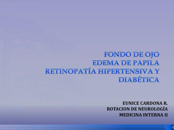 EUNICE CARDONA R.ROTACION DE NEUROLOGÍA    MEDICINA INTERNA II