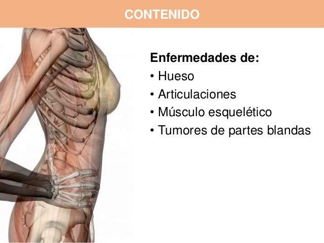 Patologías del sistema osteomuscular Slide 2