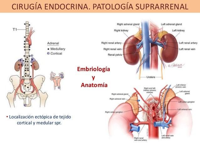 CIRUGÍA ENDOCRINA. PATOLOGÍA SUPRARRENAL • Localización ectópica de tejido cortical y medular spr. Embriología y Anatomía