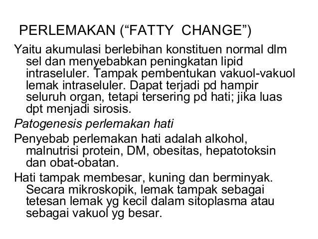 ppt Obesitas-3