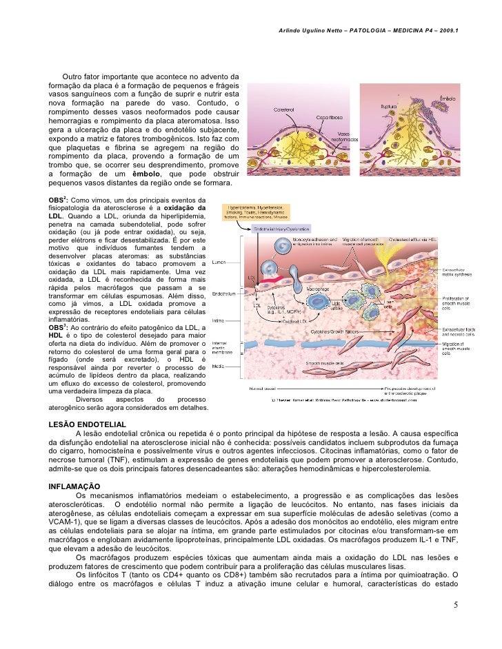 Arlindo Ugulino Netto – PATOLOGIA – MEDICINA P4 – 2009.1    Outro fator importante que acontece no advento daformação da p...