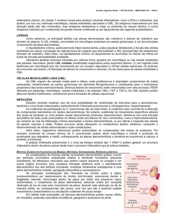 Arlindo Ugulino Netto – PATOLOGIA – MEDICINA P4 – 2009.1inflamatório crônico. As células T recebem sinais para produzir ci...