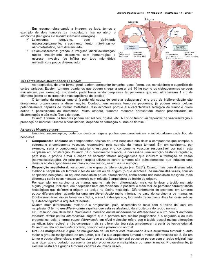 Arlindo Ugulino Netto – PATOLOGIA – MEDICINA P4 – 2009.1        Em resumo, observando a imagem ao lado, temos oexemplo de ...