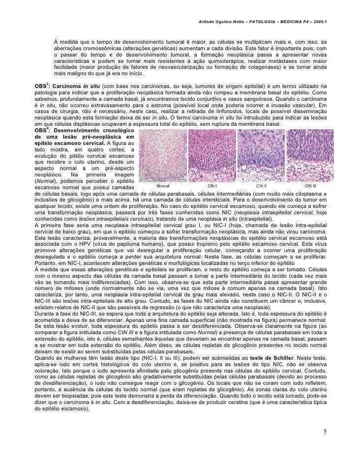 Arlindo Ugulino Netto – PATOLOGIA – MEDICINA P4 – 2009.1        À medida que o tempo de desenvolvimento tumoral é maior, a...