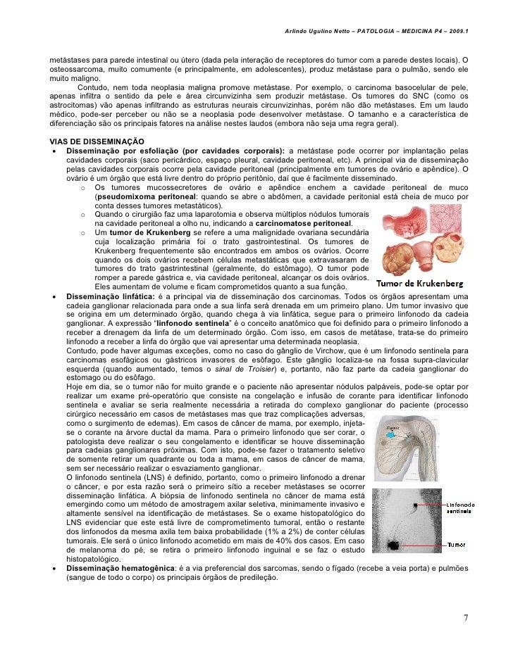Arlindo Ugulino Netto – PATOLOGIA – MEDICINA P4 – 2009.1metástases para parede intestinal ou útero (dada pela interação de...