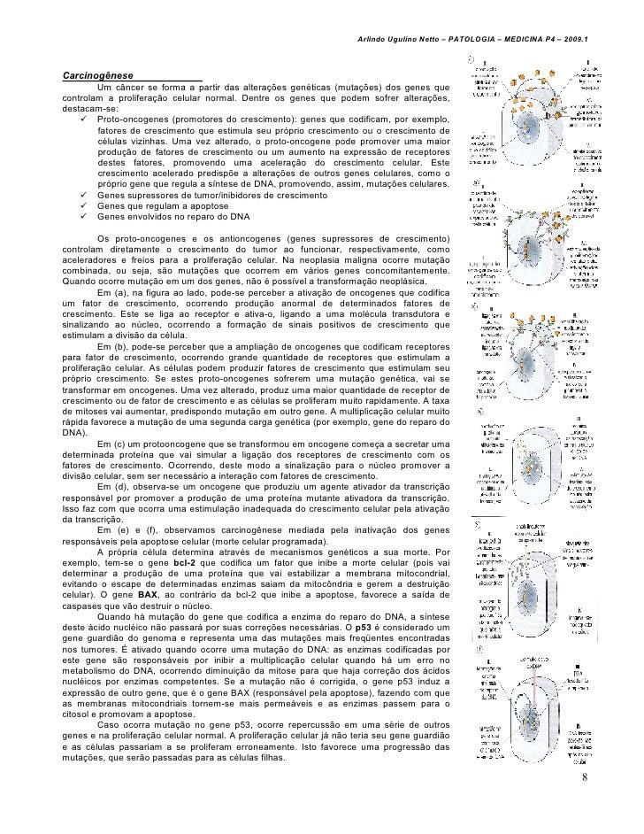 Arlindo Ugulino Netto – PATOLOGIA – MEDICINA P4 – 2009.1Carcinogênese        Um câncer se forma a partir das alterações ge...