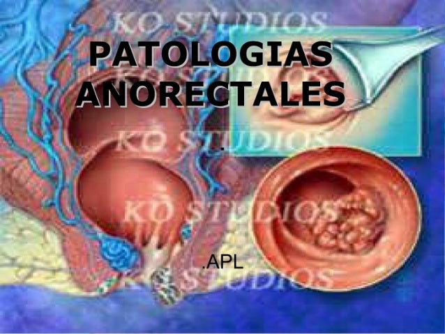 Patologia anorectales