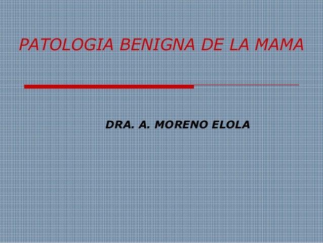 PATOLOGIA BENIGNA DE LA MAMA  DRA. A. MORENO ELOLA