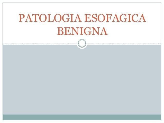 PATOLOGIA ESOFAGICA  BENIGNA