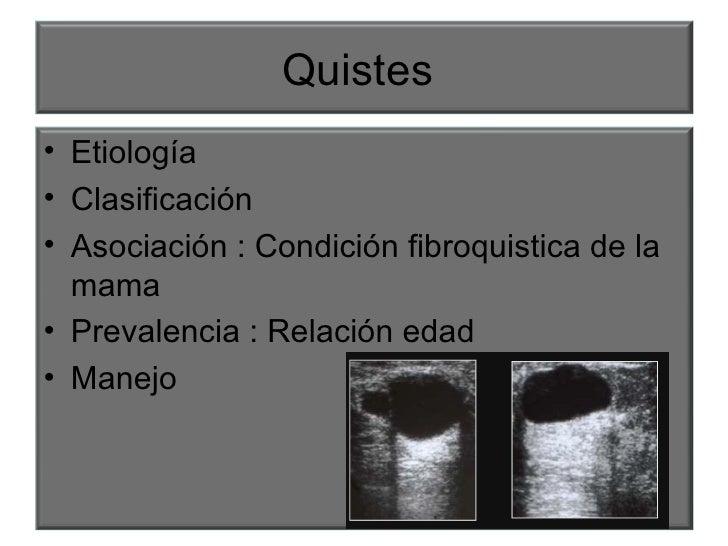 Quistes  <ul><li>Etiología </li></ul><ul><li>Clasificación  </li></ul><ul><li>Asociación : Condición fibroquistica de la m...