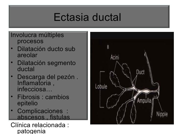 Ectasia ductal  <ul><li>Involucra múltiples procesos </li></ul><ul><li>Dilatación ducto sub areolar  </li></ul><ul><li>Dil...