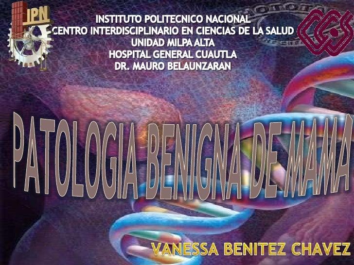 INSTITUTO POLITECNICO NACIONAL <br />CENTRO INTERDISCIPLINARIO EN CIENCIAS DE LA SALUD <br />UNIDAD MILPA ALTA<br />HOSPIT...