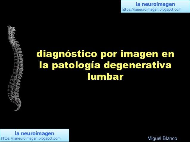la neuroimagen https://laneuroimagen.blogspot.com la neuroimagen https://laneuroimagen.blogspot.com diagnóstico por imagen...