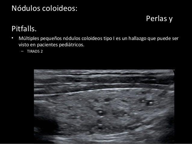 Patolog a de la gl ndula tiroidea en ecografia - Ecografia 3 meses ...