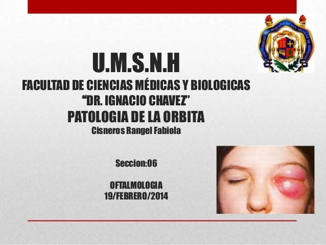 """U.M.S.N.H FACULTAD DE CIENCIAS MÉDICAS Y BIOLOGICAS """"DR. IGNACIO CHAVEZ""""  PATOLOGIA DE LA ORBITA Cisneros Rangel Fabiola S..."""