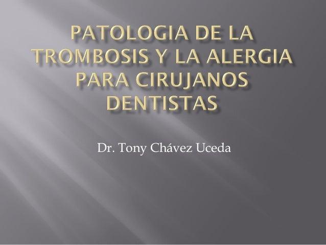 Dr. Tony Chávez Uceda