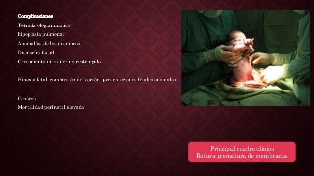 VIGILANCIA Estudios ecográficos 1 o 2 veces por semana Interrupción del embarazo Medidas terapéuticas Hidratación materna ...