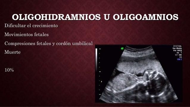 OLIGOHIDRAMNIOS U OLIGOAMNIOS Dificultar el crecimiento Movimientos fetales Compresiones fetales y cordón umbilical Muerte...