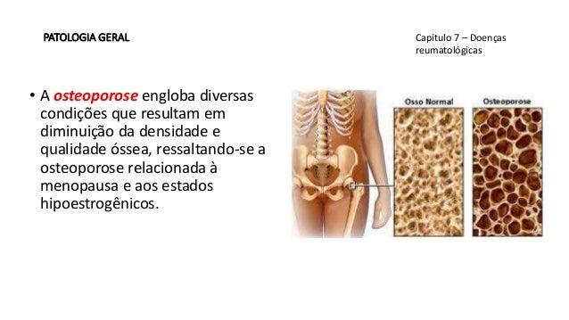 Splenomegalia:il paziente con la milza ingrossata.