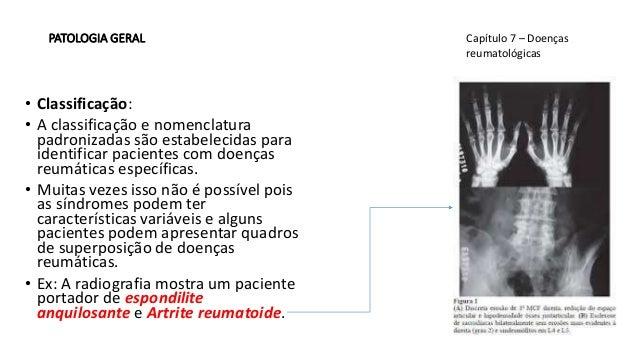 Splenomegalia - Cause e Sintomi