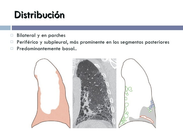 Distribución <ul><li>Bilateral y en parches </li></ul><ul><li>Periférico y subpleural, más prominente en los segmentos pos...