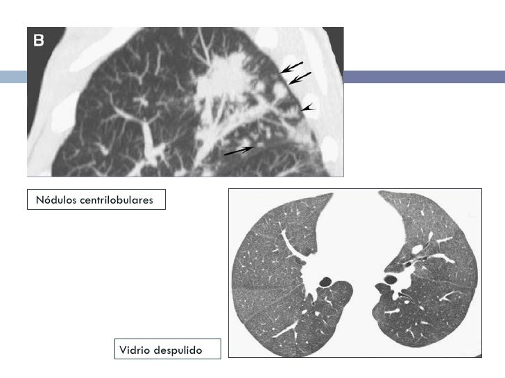 Nódulos centrilobulares Vidrio despulido
